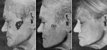 Лечение рака электромагнитными волнами, излучаемыми генератором Георгия Лаховского - исчезновение раковой опухоли - фотографии.