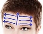 Вакуумный массаж лба - массажные линии.