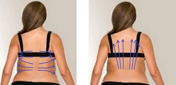 Вакуумный массаж спины - массажные линии